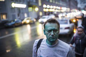 Navalny Undergoes Eye Operation In Spain